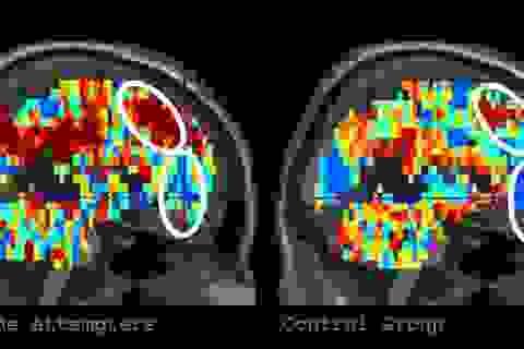 Đánh giá nguy cơ tự tử qua phản ứng của não với từ ngữ