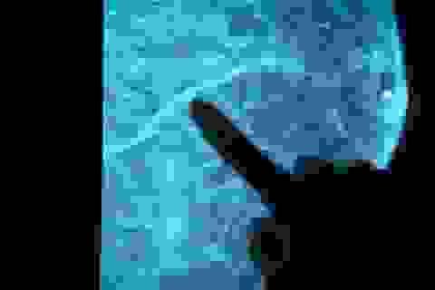 Phát hiện thêm 72 đột biến gen gây ra ung thư vú