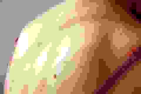 11 dấu hiệu ung thư da