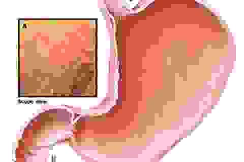 4 dạng bệnh dạ dày dễ phát triển thành ung thư