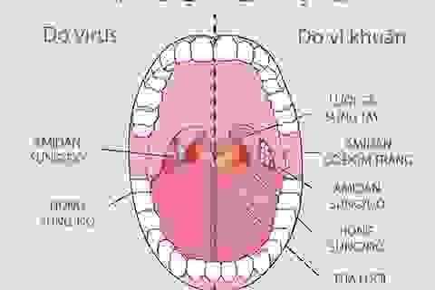 Chuyên gia chỉ cách nhận diện viêm họng nào cần dùng kháng sinh