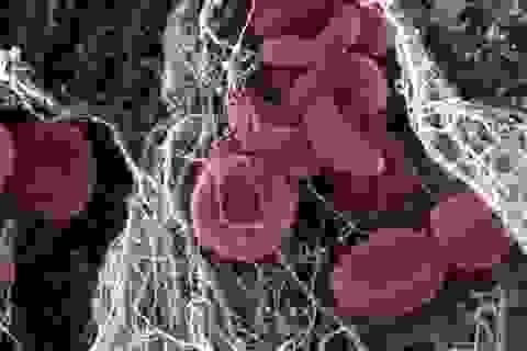 Test mới siêu rẻ phát hiện ung thư phổi và đại trực tràng sớm 3 tháng