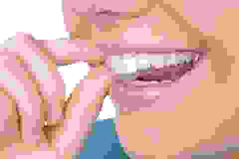 Công nghệ niềng răng Invisalign không gây mất tự tin