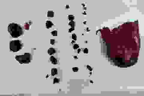 Đau bụng dữ dội vì túi mật chứa gần 50 viên sỏi