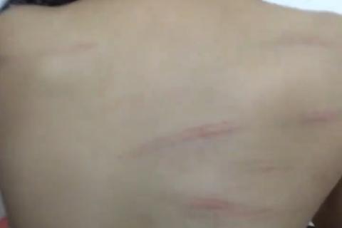 Cảnh cáo cô giáo đánh học sinh lớp 1 bầm lưng