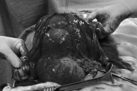 Tưởng béo bụng hóa khối u xơ tử cung to như thai 7 tháng