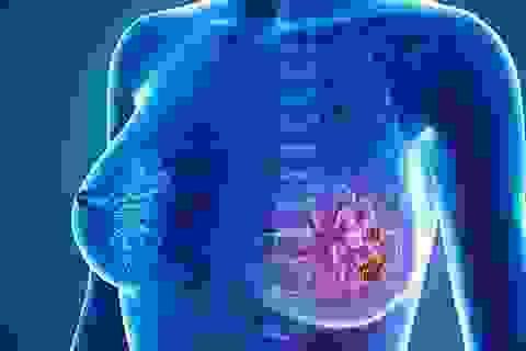 TPHCM: Tầm soát miễn phí ung thư vú cho phụ nữ sau tuổi 40