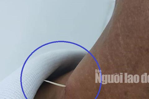 Hãi hùng xương cá đâm xuyên thực quản, lộ ra ngoài da