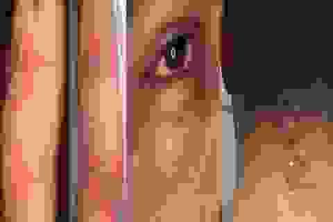 Vào mùa kiến ba khoang tăng vọt bệnh nhân đến khám vì viêm da tiếp xúc