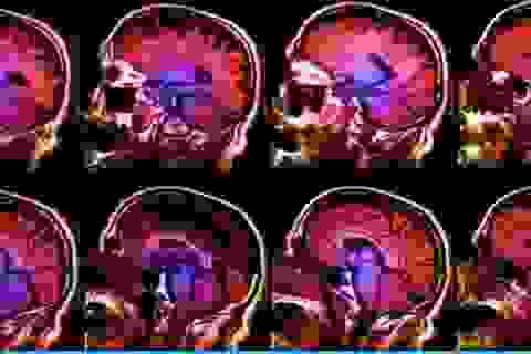Nỗi buồn trông như thế nào trong não?