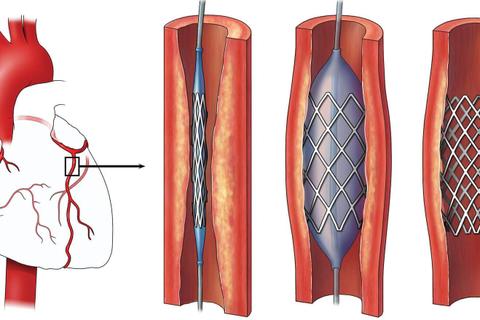 Đặt stent mạch vành được bao lâu? Cách chăm sóc kéo dài hiệu quả
