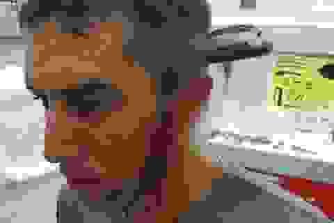 Bị dao đâm xuyên đầu vẫn tỉnh táo đạp xe đến bệnh viện