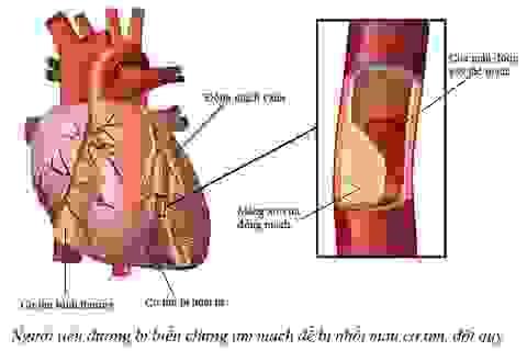 Người tiểu đường bị biến chứng tim mạch dễ cận kề với tử vong