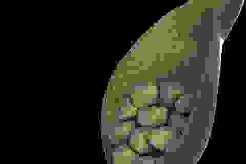 Video: Uống thuốc có làm tan sỏi túi mật hoàn toàn không?