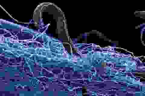 """Hàng loạt vi khuẩn """"thây ma"""" đang ẩn nấp sâu dưới vỏ Trái Đất"""