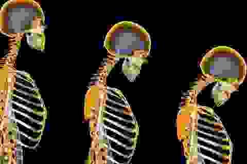 7 điều ít người biết về loãng xương