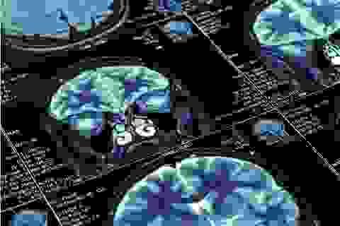Tuổi thơ nghèo có thể ảnh hưởng đến sự phát triển trí não
