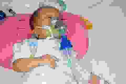 Bé gái 8 tháng tuổi nguy kịch tính mạng vì bệnh tim bẩm sinh