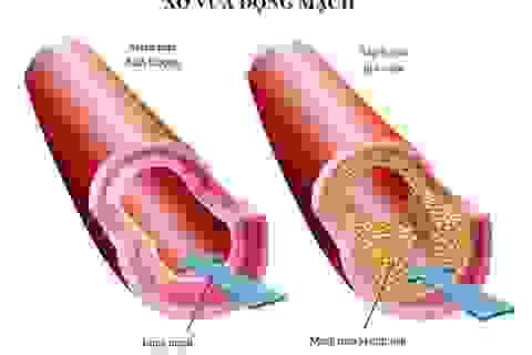 Biến chứng xơ vữa động mạch do rối loạn lipid máu nguy hiểm ra sao?