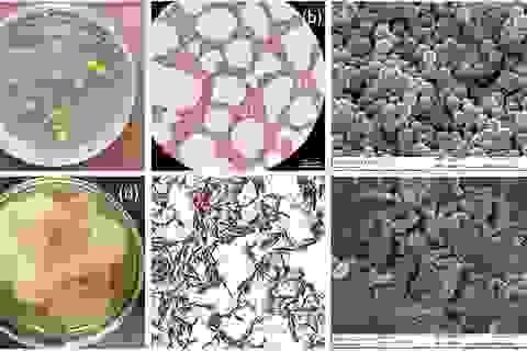 Vi khuẩn bảo vệ tranh cổ khỏi các vi khuẩn ăn sắc tố