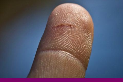 Vết giấy cắt vào tay có đau đớn như bạn nghĩ?