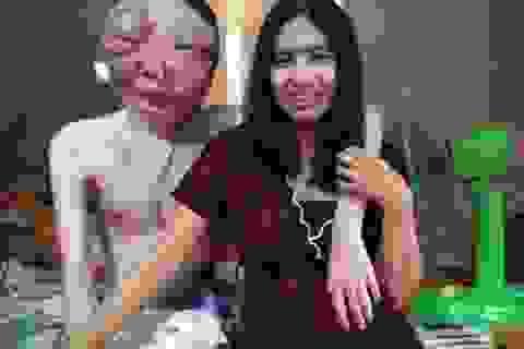 Khuôn mặt bạn trai mọc đầy u đến biến dạng, cô gái Thái vẫn yêu