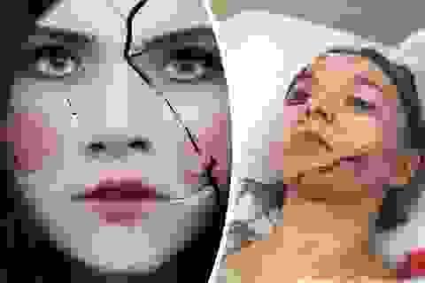 Nữ diễn viên gặp nạn vì cảnh quay áp mặt vào cửa kính