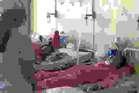 Bệnh nhân 4 lần ngưng thở khi can thiệp gắp hạt mãng cầu trong lá phổi duy nhất