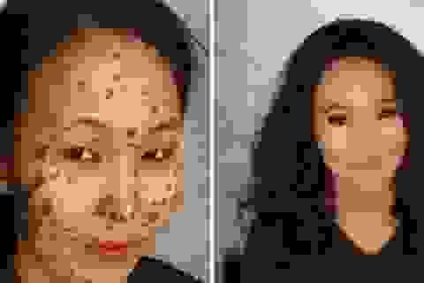 """""""Phù thủy"""" trang điểm biến khuôn mặt đầy vết bớt trở nên vô cùng xinh đẹp"""