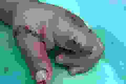 Hi hữu bé 3 tuổi mất ngón trỏ vì thọc tay vào hộp xích xe gắn máy