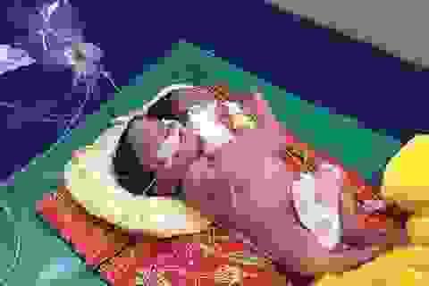 Em bé hai đầu, nặng 6,8 kg ra đời ở Campuchia
