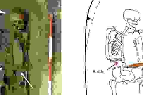 Người đàn ông Ý thời trung cổ đã thay thế bàn tay bị cắt bỏ bằng... vũ khí