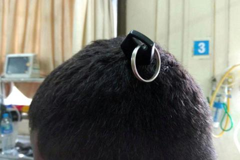 Hy hữu: Bị chìa khóa cắm thẳng vào đầu - não không tổn thương, chìa vẫn hoạt động tốt!
