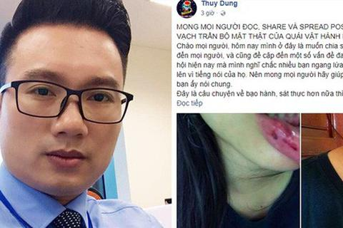 Vụ em vợ BTV Minh Tiệp tố bị bạo hành: Sở GD&ĐT Hà Nội nói gì?
