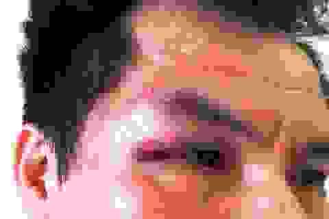 Một nhà báo bị đánh túi bụi khi đang tác nghiệp