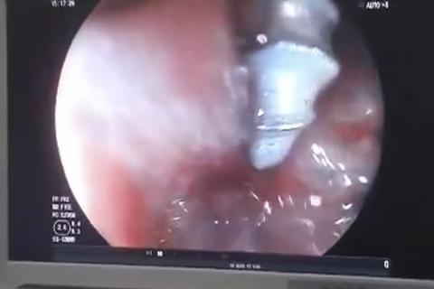 Đinh ốc nằm sâu trong tá tràng bé 2 tuổi