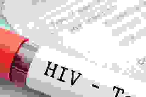 Test nước bọt phát hiện người nhiễm HIV trong cộng đồng