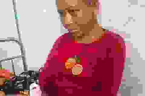 Vụ chủ nhà tra tấn dã man người làm thuê: Bệnh viện phẫu thuật thẩm mỹ miễn phí cho nạn nhân