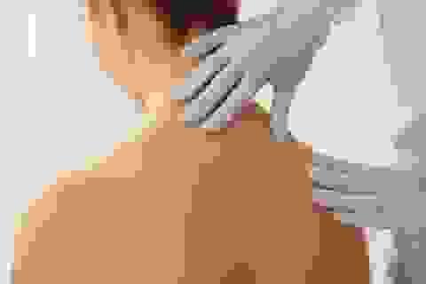 10 biểu hiện lạ ở da có thể là dấu hiệu của bệnh nghiêm trọng