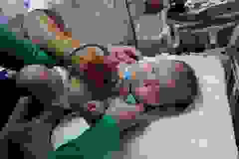 Hơn 2.000 trẻ em được khám sàng lọc tim bẩm sinh miễn phí
