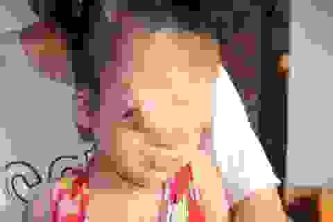 Xót xa trước số phận bất hạnh của cô bé 3 tuổi có khuôn mặt dị dạng