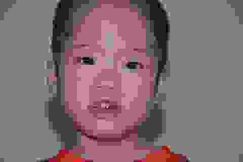 Bệnh viện Nhi Trung ương hỗ trợ toàn bộ chi phí phẫu thuật cho bé Hồng Quyền