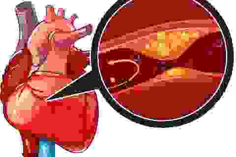Thiếu máu cơ tim cục bộ nguy hiểm nhưng vẫn có nhiều cách giảm rủi ro