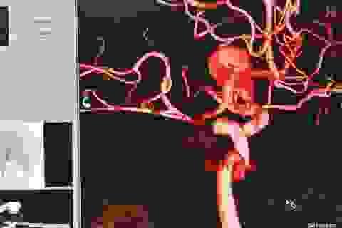 Đau đầu dữ dội vì túi phình khổng lồ ở động mạch não