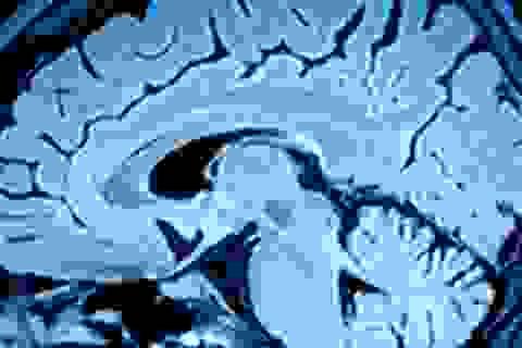 Đã có cách chuyển đổi tín hiệu não người thành lời nói