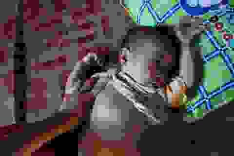 Nhói lòng đứa trẻ 15 tháng tuổi tím ngắt vì bệnh tim phức tạp