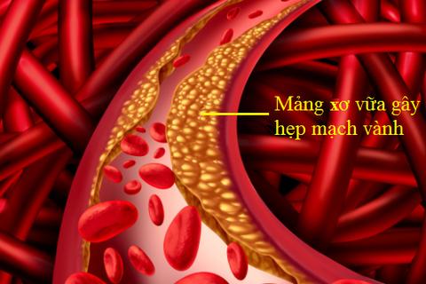 Sống khỏe với tắc hẹp mạch vành không khó, nếu bạn hiểu đúng bệnh