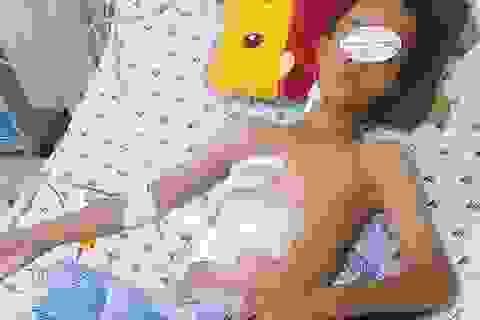Tai nạn lao động khiến cậu bé 13 tuổi rách gan, thủng phổi