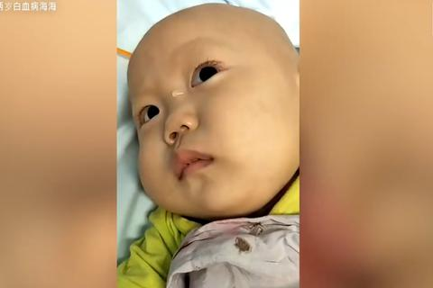 Cuộc đời bi kịch của cậu bé 2 tuổi nổi tiếng mạng xã hội khiến nhiều người rơi nước mắt