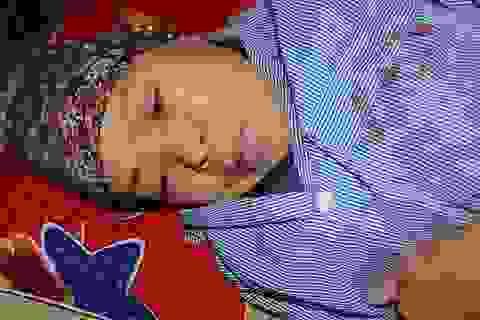 Mong manh tính mạng người phụ nữ dân tộc Nùng mắc cùng lúc nhiều thứ bệnh